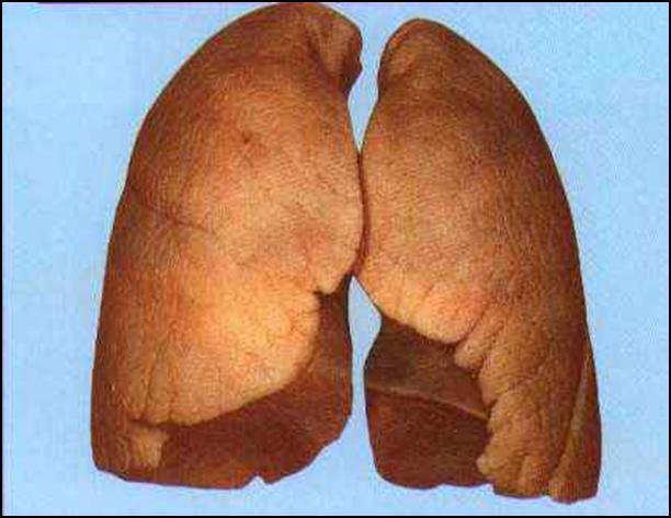 Вентиляция легких (число вдохов, умноженное на объем вдыхаемого